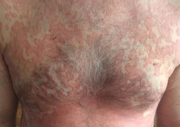 Psoriasis - Psoriasis Disease